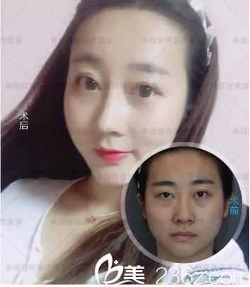 北京米扬丽格全脸填充加隆鼻真人案例
