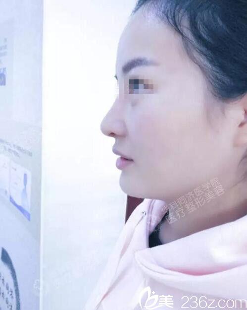 分享我在同济邓裴医生那里做鼻子的经历