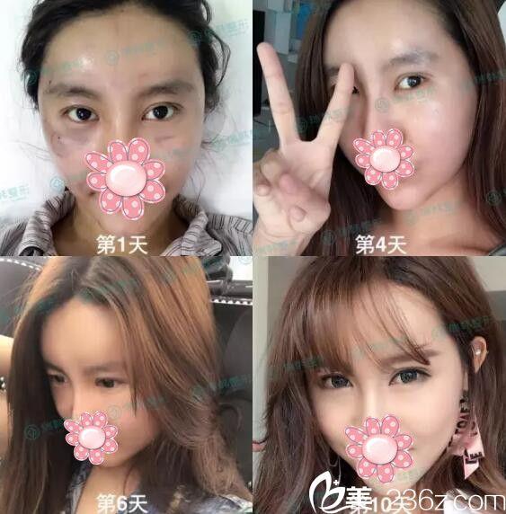 小内双在海南瑞韩做完双眼皮又做自体脂肪面部填充蜕变案例