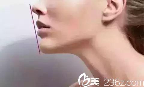 嘴唇自然紧闭,鼻尖唇珠下巴在一条线上