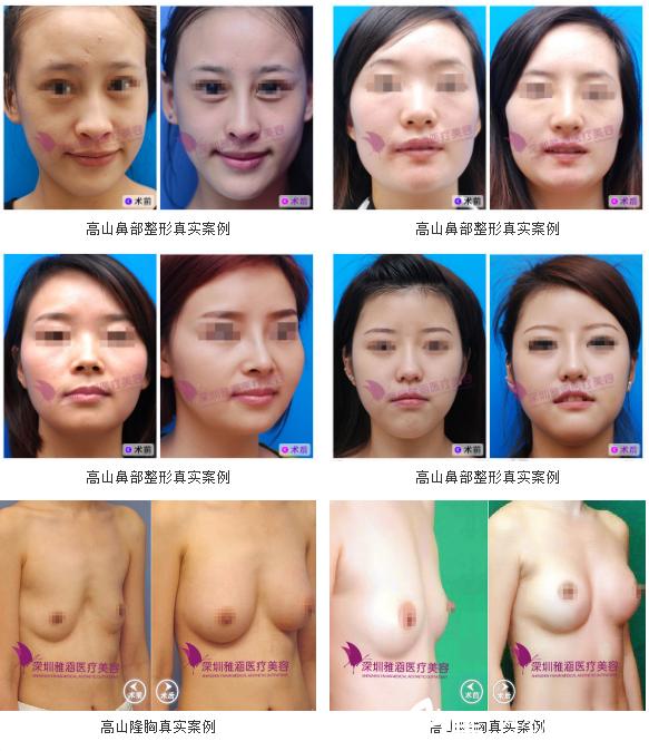 深圳雅涵医疗美容医院高山隆鼻+隆胸案例组图
