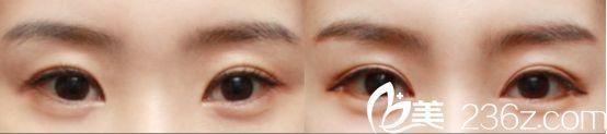 杭州爱琴海医院双眼皮真人案例