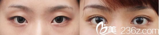 杭州爱琴海医院双眼皮真人案例2
