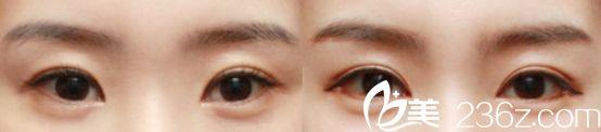 杭州爱琴海医院双眼皮真人案例3
