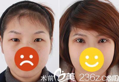 全切双眼皮3个月效果对比图