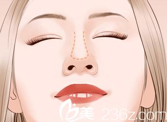 鼻尖轮廓图
