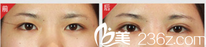 北京丽都医疗美容医院案例