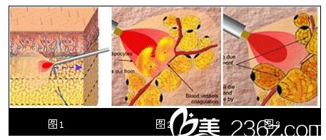 激光溶脂手术原理