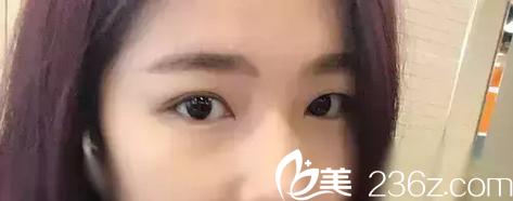 大小眼眼睛一单一双肿泡