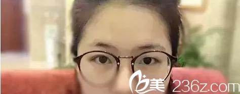 韩国原辰整形外科朴原辰术前照片1