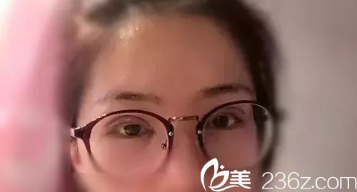 韩国原辰整形外科术后第3天