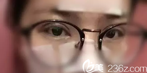 双眼皮术后第8天