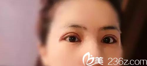 双眼皮手术术后第9天
