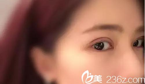 韩国切开双眼皮术后第11天