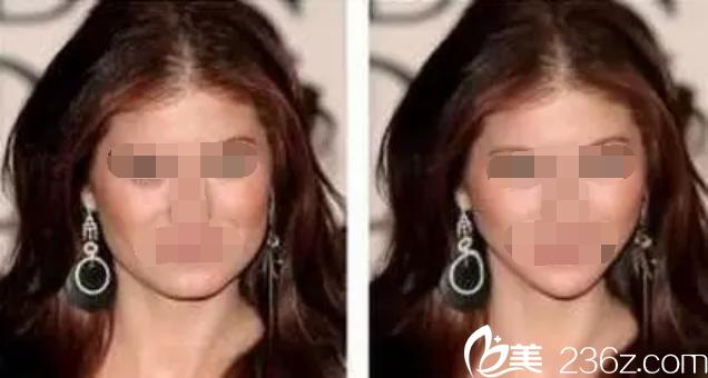 大脸和小V脸的区别