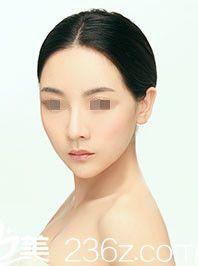 为了完成梦想 我选择先去武汉美莱做隆鼻整形