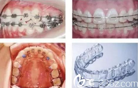 牙齿矫正方式的选择