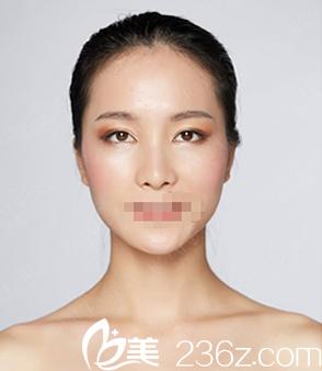 成都蜀尚蓉雅整形常小莉全切双眼皮+内眦赘皮矫正术后30天恢复效果