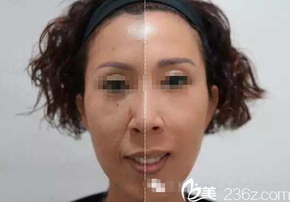 三亚维多利亚乔雅登玻尿酸改善鼻唇沟泪沟蜕变案例