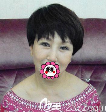 大妈在大连瑞丽做了面部除皱+眼部整形 恢复了年轻容颜