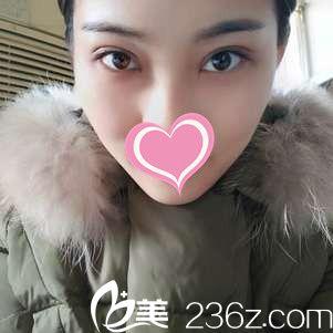 单眼皮女生在廊坊凯润婷做韩式双眼皮恢复过程日记分享
