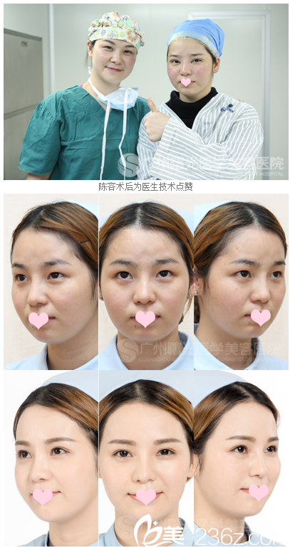 广州曙光做双眼皮怎么样?范丹和王娟医生双眼皮真人案例告诉你图片