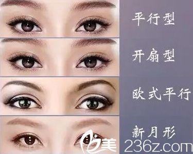 埋线法做双眼皮操作简单,易于掌握,创伤小,恢复快,无或有小切口,手术