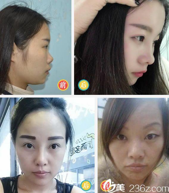 杭州东方眼鼻整形代表案例