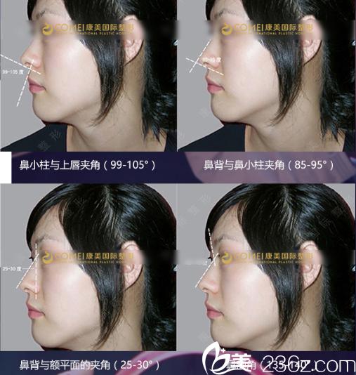 李智明专家鼻尖精雕术案例