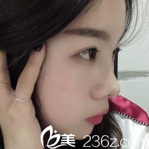 公开我3月份找杭州东方整形曾茜医生做鼻子的手术经历及恢复效果