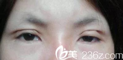 韩国清潭第一修复眼睛难不难?来看看成镇模院长怎么说