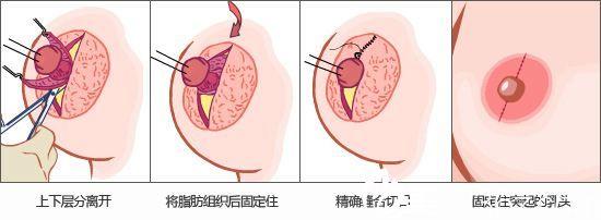 乳头乳晕整形术