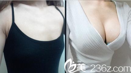隆胸前后对比图