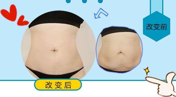 杭州东方腰腹吸脂前后效果对比照片
