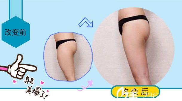 杭州东方整形吸脂瘦大腿怎么样