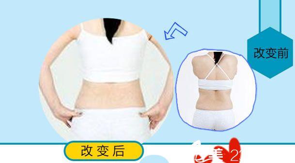 杭州东方整形背部吸脂案例