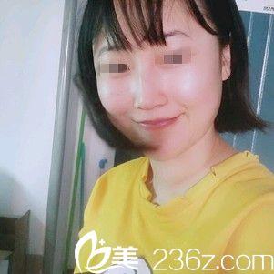 在武汉至尚贝蓓玻尿酸注射完苹果肌后14天变得饱满