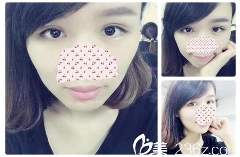 找广州中家医家庭医生整形医院聂云飞医生做全切双眼皮失败修复1个月了