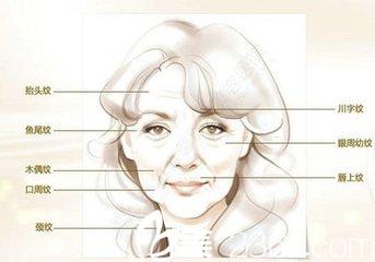 玻尿酸主要去除脸上的静态皱纹