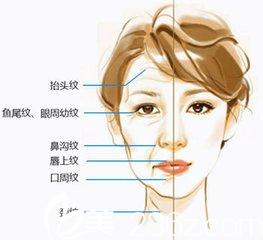 肉毒素主要针对去除面部动态皱纹