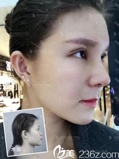 深圳雅涵医疗美容门诊部高山术前照片1