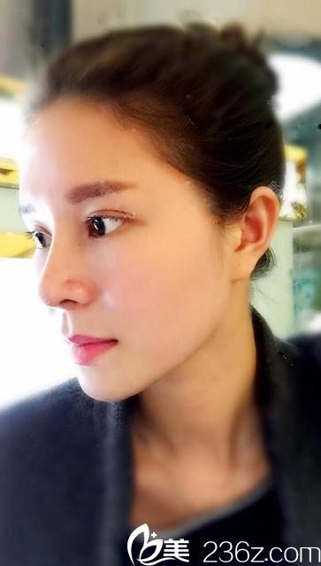 找深圳雅涵隆鼻大王高山做的双眼皮和鼻综合隆鼻3个月案例分享