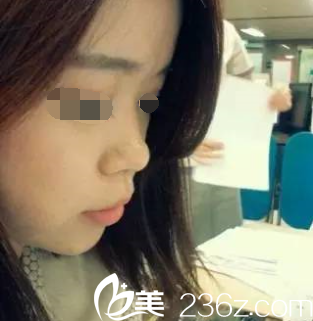 韩国will整形外科医院魏亨坤术前照片1