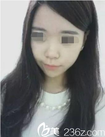 隆鼻手术术前照片