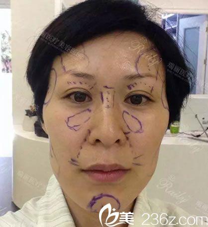 徐少俊设计的面部脂肪填充方案
