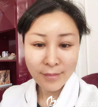 自体脂肪填充全脸3天的效果