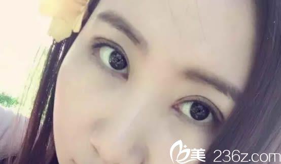 福建省立医院整形美容科郑胜武术后照片1