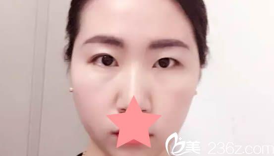 福建省立医院整形美容科郑胜武术前照片1