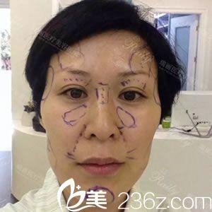 杭州瑞丽医疗美容医院徐少骏术前照片1