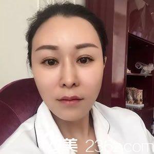 杭州瑞丽整形徐少俊院长为35岁职工做面部脂肪填充全脸9个月效果